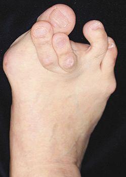 足 の 親指 付け根 が 痛い