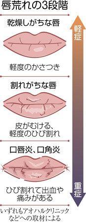 が 唇 の 切れる 横