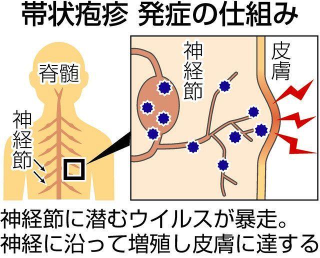 帯状 疱疹 予防 接種 料金