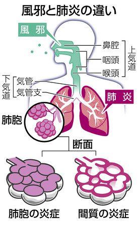 質 肺炎 コロナ 性 ウイルス 間
